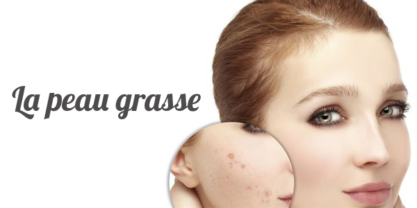 #peau_grasse, #recette_lotion, 1001questions_reponses_experts